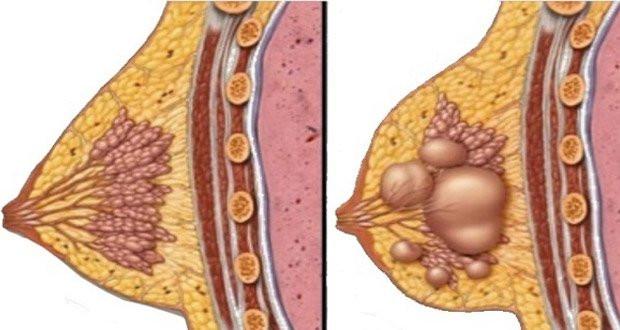 Kyste mammaire traitement naturel